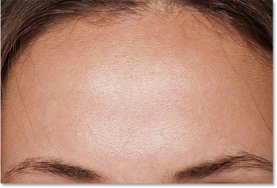 How to remove pimples on forehead recommend