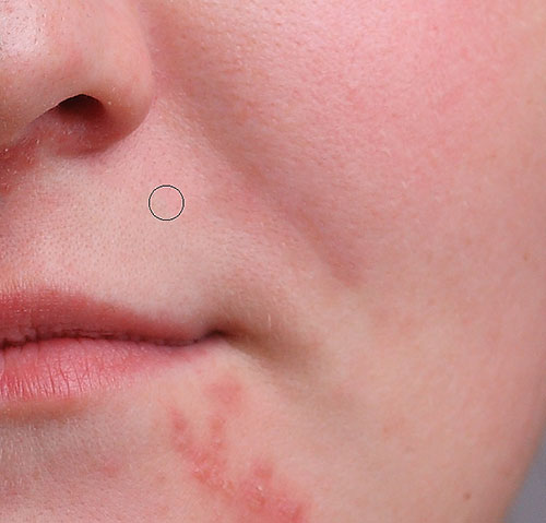 Removing more pimples with the Spot Healing Brush. Image © 2016 Photoshop Essentials.com
