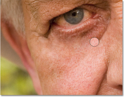 Continuing to remove the larger wrinkle under the man's eye with the Healing Brush. Image © 2010 Photoshop Essentials.com