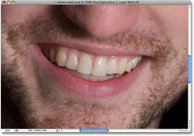 Yellow teeth in Photoshop. Image © 2008 Photoshop Essentials.com.