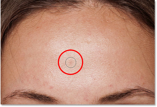Positioning the Spot Healing Brush over a second skin blemish to heal it