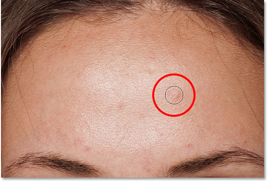 Positioning the Spot Healing Brush over a skin blemish to remove it