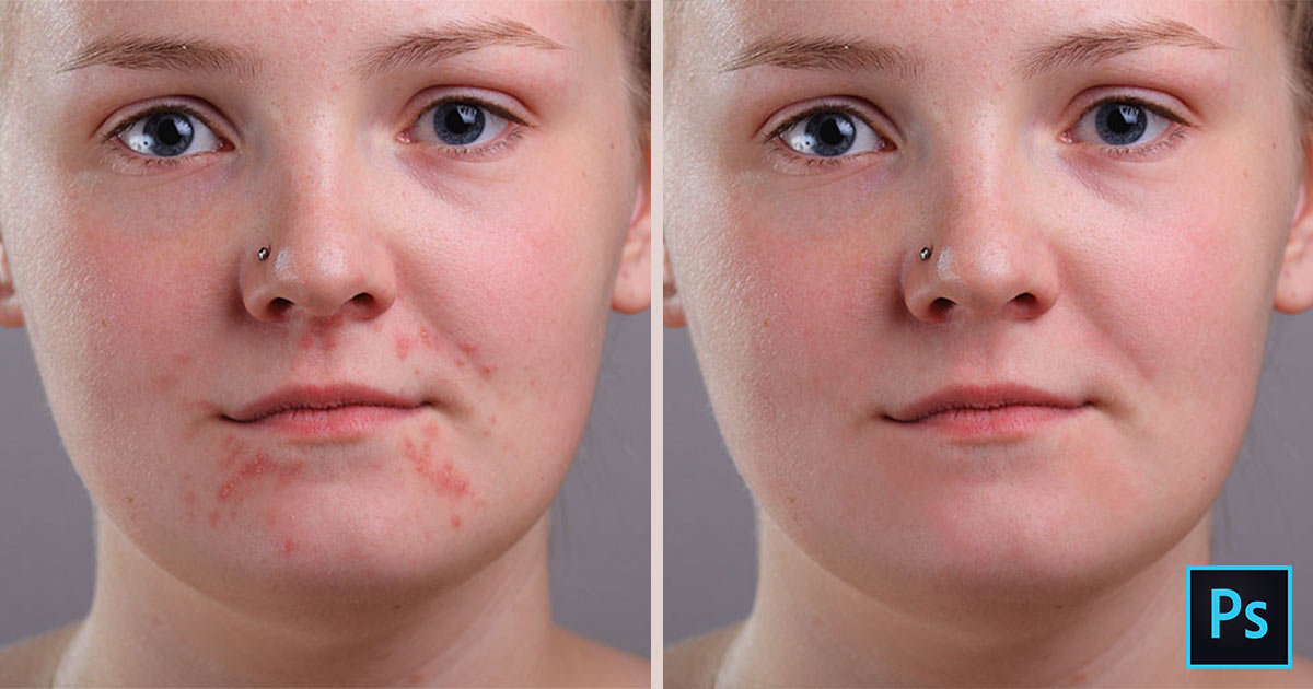 How to remove acne and skin blemishes in Photoshop tutorial