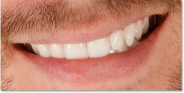 The teeth have been whitened but areas around them need to be cleaned up.