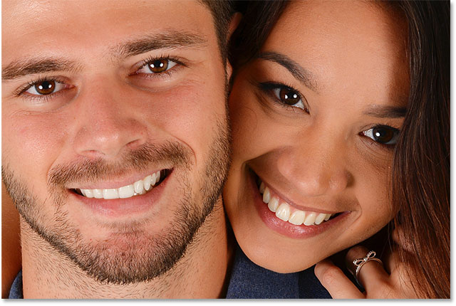 The man's teeth have been whitened in Photoshop. The woman's teeth are still yellow