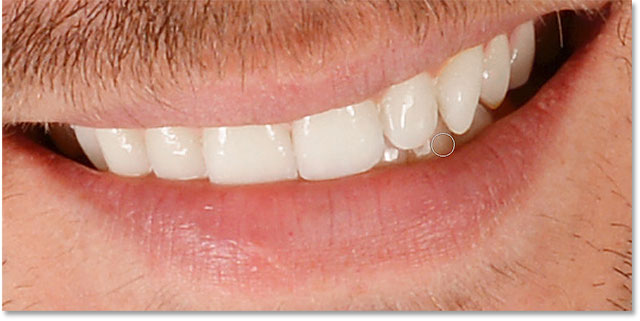 Adjusting the whitening and brightening of specific teeth in the image