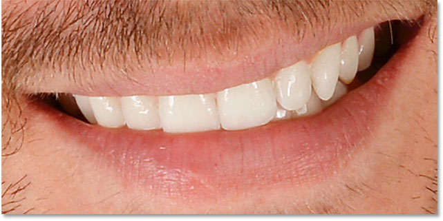 The teeth after whitening them in Photoshop and cleaning up the surrounding areas