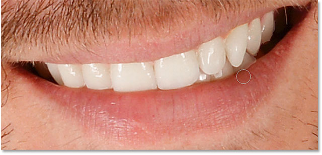 Hiding the whitening and brightening effect from the areas below the teeth