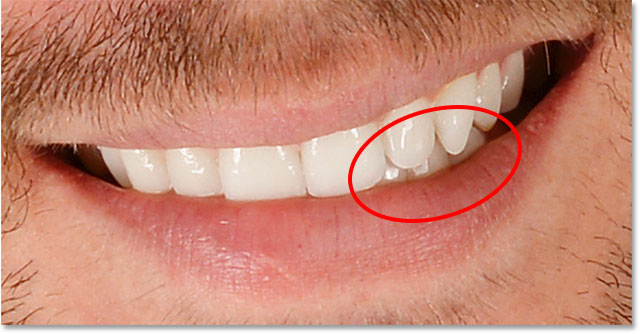 Some of the teeth look faded and washed out after brightening.