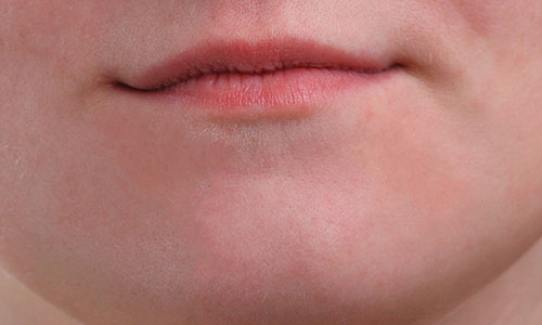 The girl's chin is now pimple free.