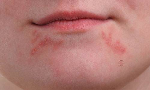 Removing the isolated pimples from the girl's chin with the Spot Healing Brush.