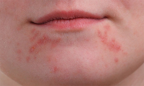 A close-up of the girl's chin showing larger clusters of pimples.