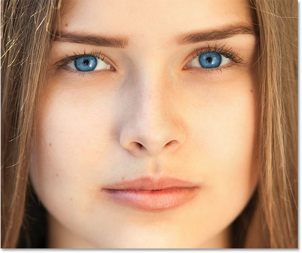 Eye surgery with permanently eye color ... - BrightOcular