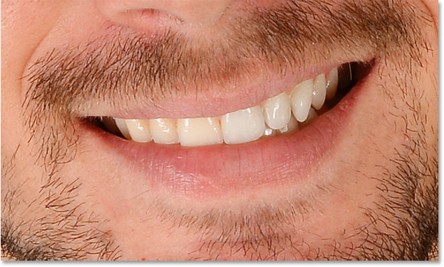A before and after comparison of the teeth whitening so far.