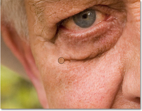 Removing the larger wrinkle under his eye with a series of short strokes. Image © 2010 Photoshop Essentials.com