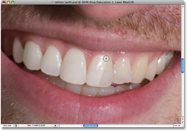 Revealing the whitening of the teeth. Image © 2008 Photoshop Essentials.com.